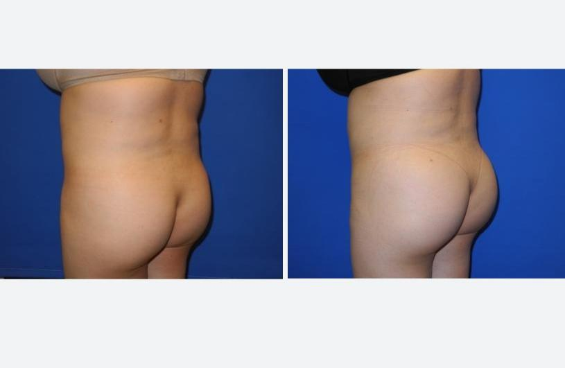 Brazilian Butt Lift Dr. Shahram Salemy
