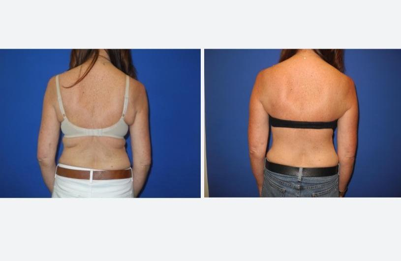 Bra Line Back Lift Posterior with Bra – Shahram Salemy, Seattle Plastic Surgeon