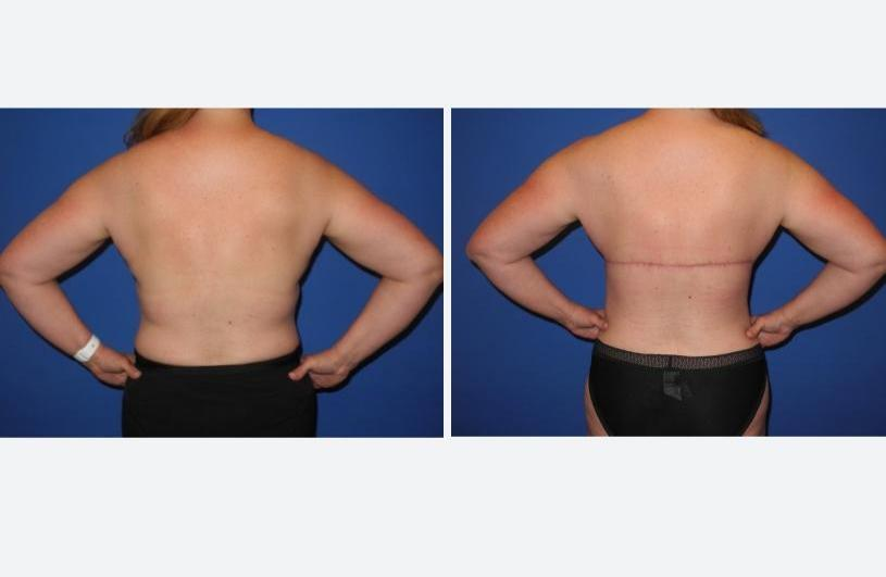 Posterior with Arms Lifted - Bra Line Back Lift