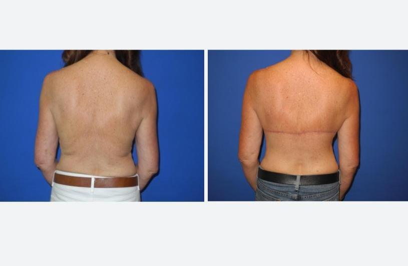 Bra Line Back Lift Posterior without Bra – Shahram Salemy, Seattle Plastic Surgeon