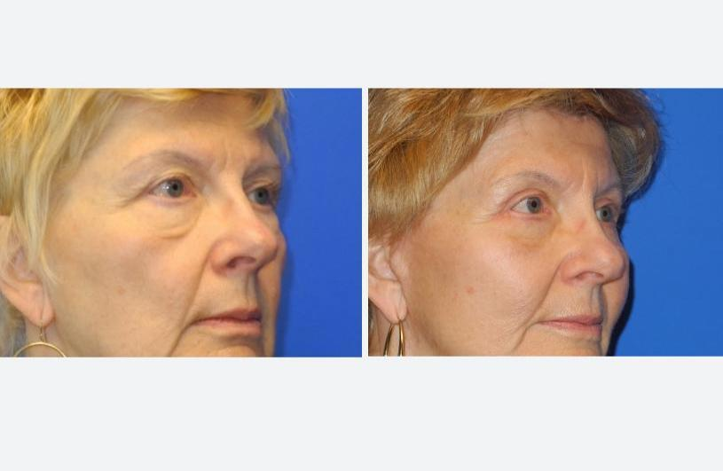 Eyelid Rejuvenation Right Oblique Before and After