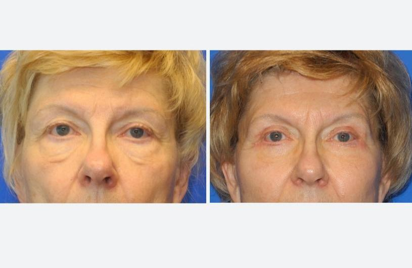 Eyelid Rejuvenation Front Before and After