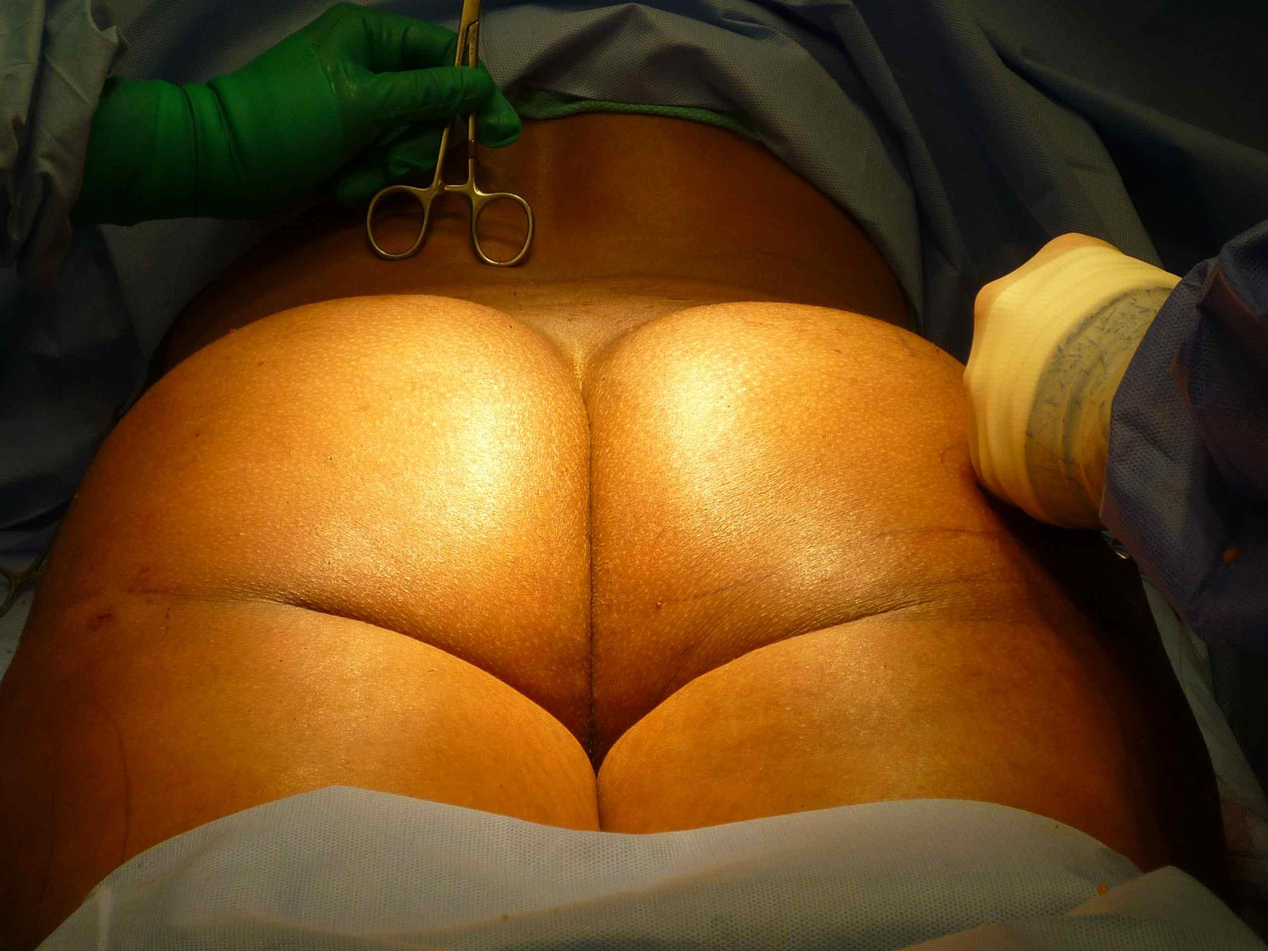 butt-implants-pics