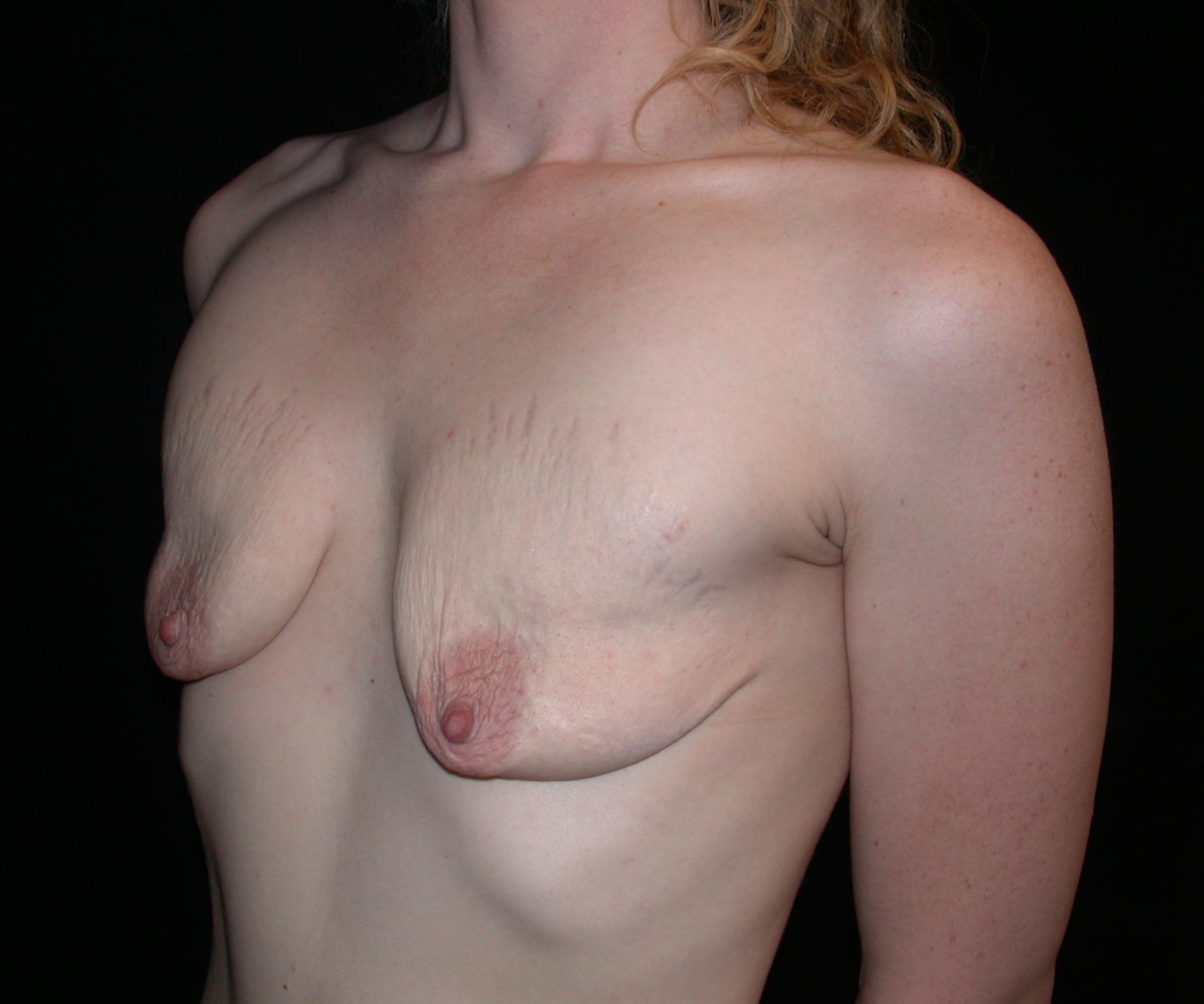 Порно женские повисшие груди фото
