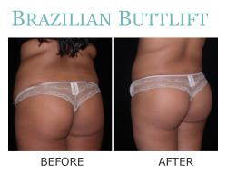 Seattle Brazilian Butt Lift Buttock Augmentation