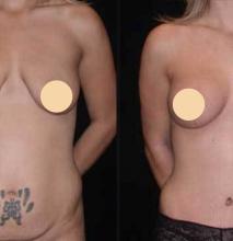 Seattle Breast Lift Tummy Tuck Labiaplasty