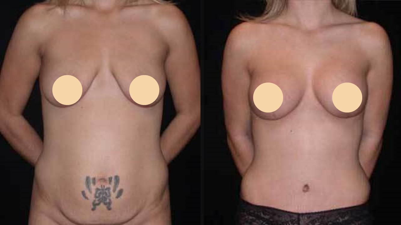 Breast lift seattle