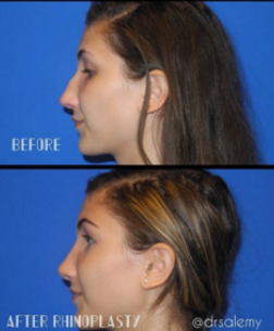 seattle-rhinoplasty-nose-job