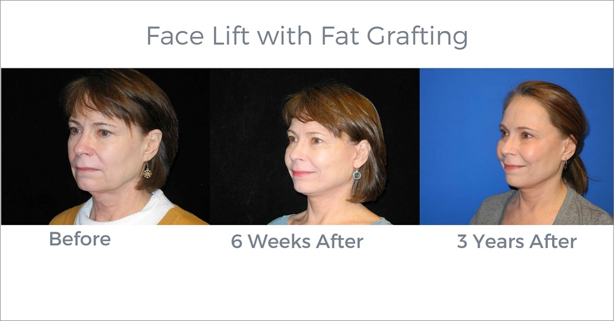 Seattle-Facelift-Fat-Graft-Necklift-CheekLipostructure-Before-After-1