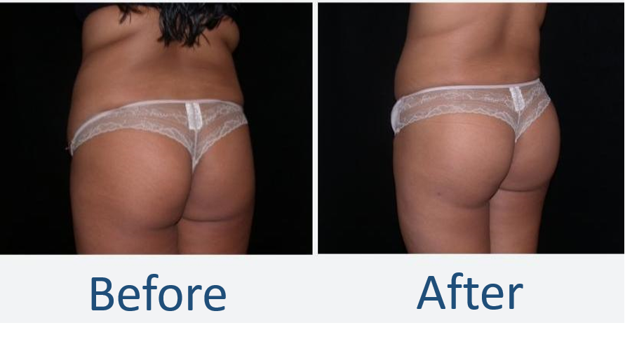 Seattle-Brazilian-Butt-Lift-Before-After