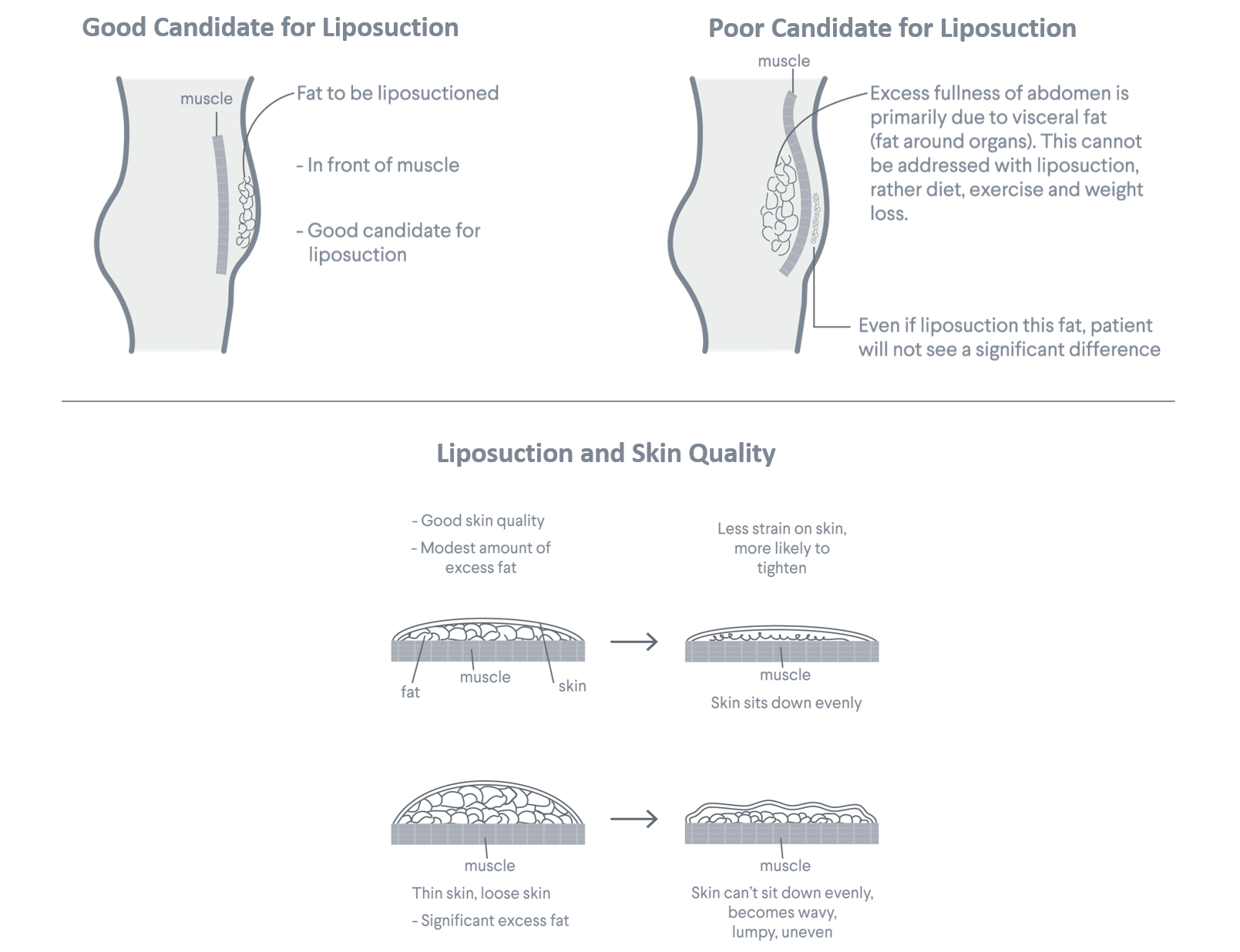 liposuction-seattle-plastic-surgeon-dr-salemy-fat-and-skin-quality
