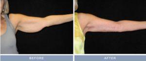 arm-lift-brachioplasty-and-liposuction-left-inner