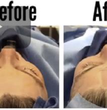 facial-rejuvenation-surgery-fat-transfer-shahram-salemy